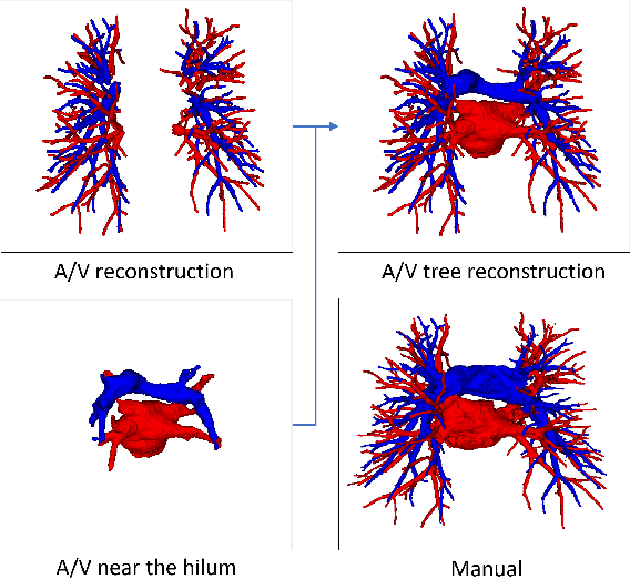 Figure 4 for Automatic Pulmonary Artery and Vein Separation Algorithm Based on Multitask Classification Network and Topology Reconstruction in Chest CT Images