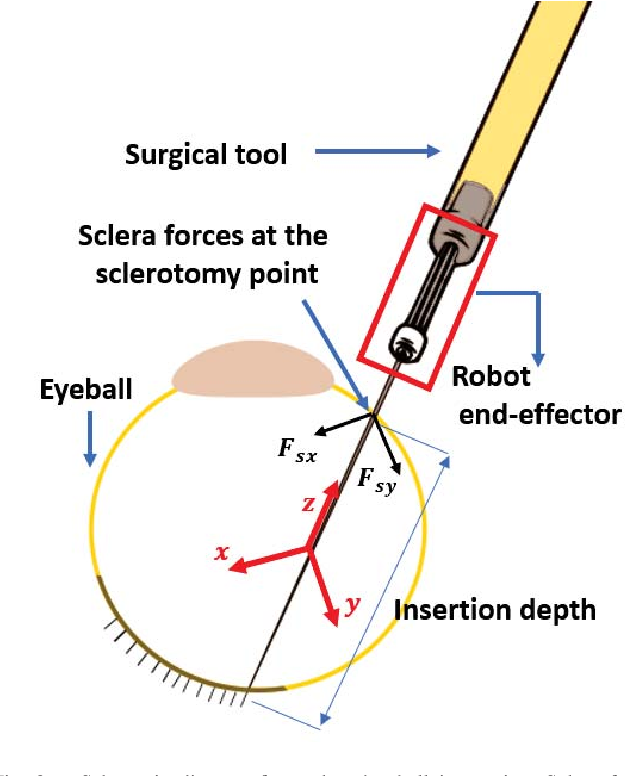 Figure 2 for Sclera Force Control in Robot-assisted Eye Surgery: Adaptive Force Control vs. Auditory Feedback