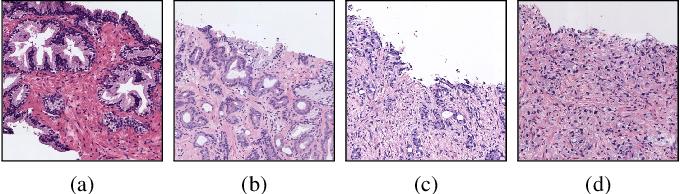 Figure 1 for Gleason Grading of Histology Prostate Images through Semantic Segmentation via Residual U-Net