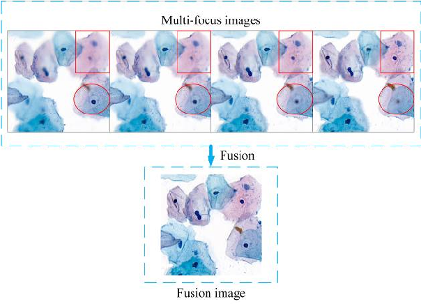Figure 1 for FFusionCGAN: An end-to-end fusion method for few-focus images using conditional GAN in cytopathological digital slides