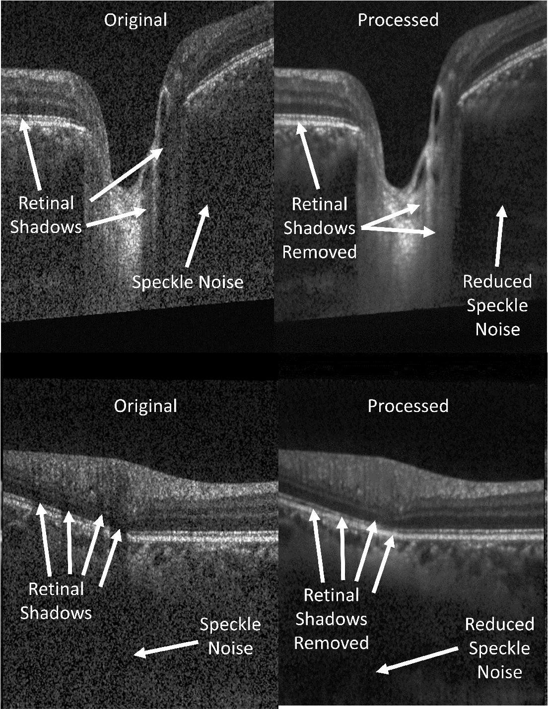 Figure 3 for OCT-GAN: Single Step Shadow and Noise Removal from Optical Coherence Tomography Images of the Human Optic Nerve Head