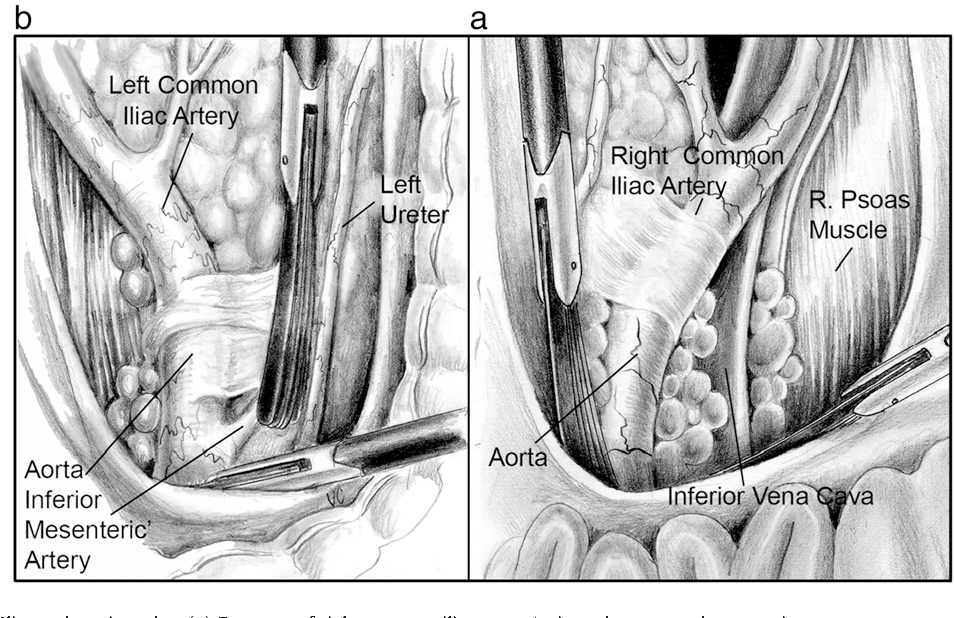 Total laparoscopic hysterectomy with pelvic/aortic lymph node ...