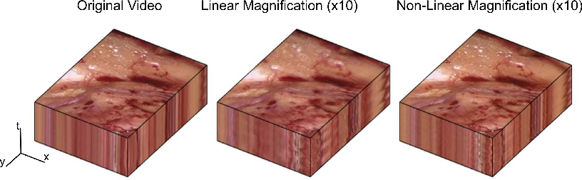 Figure 3 for Higher Order of Motion Magnification for Vessel Localisation in Surgical Video