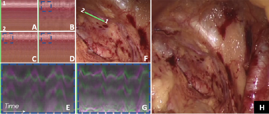 Figure 4 for Higher Order of Motion Magnification for Vessel Localisation in Surgical Video