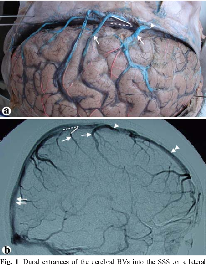 The dural entrance of cerebral bridging veins into the superior ...