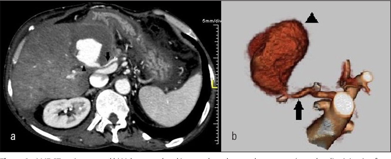 Figure 2: a) MDCT angiogram and b) Volume rendered images show the pseudoaneurysm (arrowhead) originating from hepatic artery (arrow). Hypodense peripheral partial thrombus is also seen around contrastmedia on a).