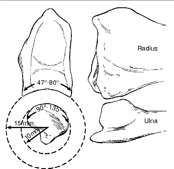 Figure 1 From The Distal Radioulnar Joint Problems And Solutions