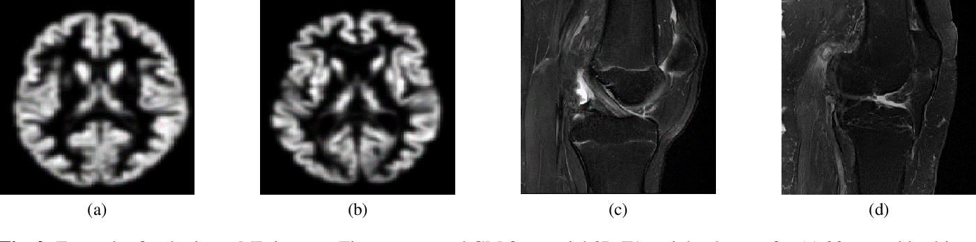 Figure 3 for Organ-based Age Estimation based on 3D MRI Scans
