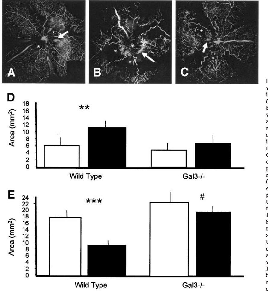 FIG. 7. AGEs increase retinal ischemia and reduce neovascularization in an in vivo model. A: The hyperoxiainduced retinopathy model results in retinal ischemia (*) at P20, which drives a neovascular response depicted by hyperfluorescent preretinal fronds (arrow). B: When wild-type mice are infused with GA-MSA between P12 and P20, the retinal microvasculature shows more ischemia when compared with native-MSA controls assessed at P20, and there was a significant increase in the area of ischemia (*) in the inner retina but less neovascularization (arrow) when compared with native MSA controls. C: Gal3 / mice infused with GA-MSA fail to show the extensive ischemia evident in the wild-type mice exposed to this modified albumin. D: Quantification of retinal ischemia in wild-type mice shows that GA-MSA (f) induces enlarged areas of ischemia (indicative of suppressed intraretinal angiogenesis) at P20 when compared with native MSA controls ( ). In gal3 / mice, there is no difference between MSA control and GA-MSA treatment. For all experiments, there were a minimum of 10 mice per group, and data are presented as means SD. **P < 0.01 between GA-MSA and native-MSA treatments. E: In wild-type mice, exposure to GA-MSA causes a significant suppression of preretinal neovascularization. The gal3 / neonatal mice show a greater overall angiogenic response, and exposure to GA-MSA fails to alter preretinal neovascularization when compared with wild-type. For all experiments, there were a minimum of 10 mice per group, and data are presented as means SD. **P < 0.01 and ***P < 0.001 between GA-MSA and native-MSA treatments; #P < 0.05 between wild-type and gal3 / .