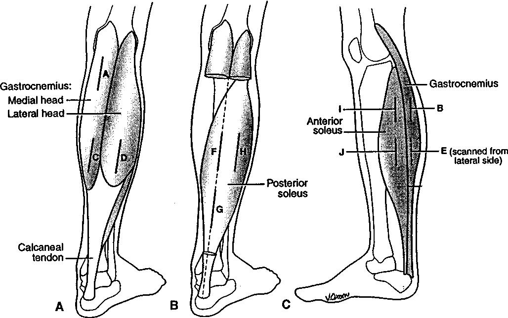 sonographic studies of human soleus and gastrocnemius muscle