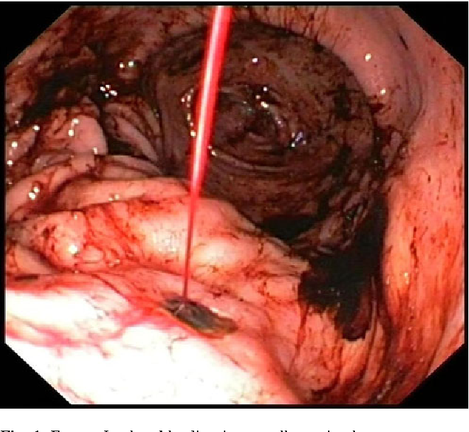 Update On The Endoscopic Management Of Peptic Ulcer Bleeding