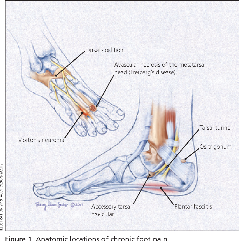 figure 1  anatomic locations of chronic foot pain