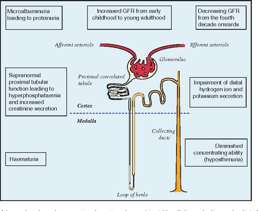 Sickle Cell Nephropathy A Practical Approach Semantic Scholar