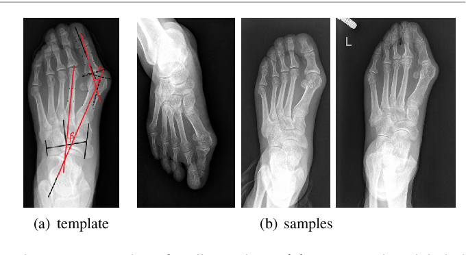 Figure 1 for A Dataset and Method for Hallux Valgus Angle Estimation Based on Deep Learing
