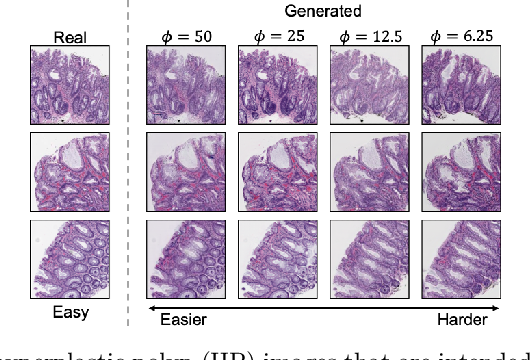 Figure 1 for Difficulty Translation in Histopathology Images