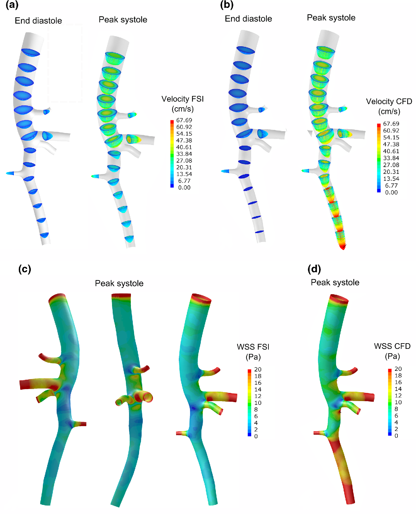 An Animal-Specific FSI Model of the Abdominal Aorta in Anesthetized ...