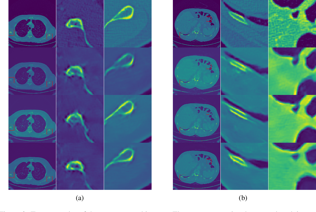 Figure 3 for Learning to Scan: A Deep Reinforcement Learning Approach for Personalized Scanning in CT Imaging