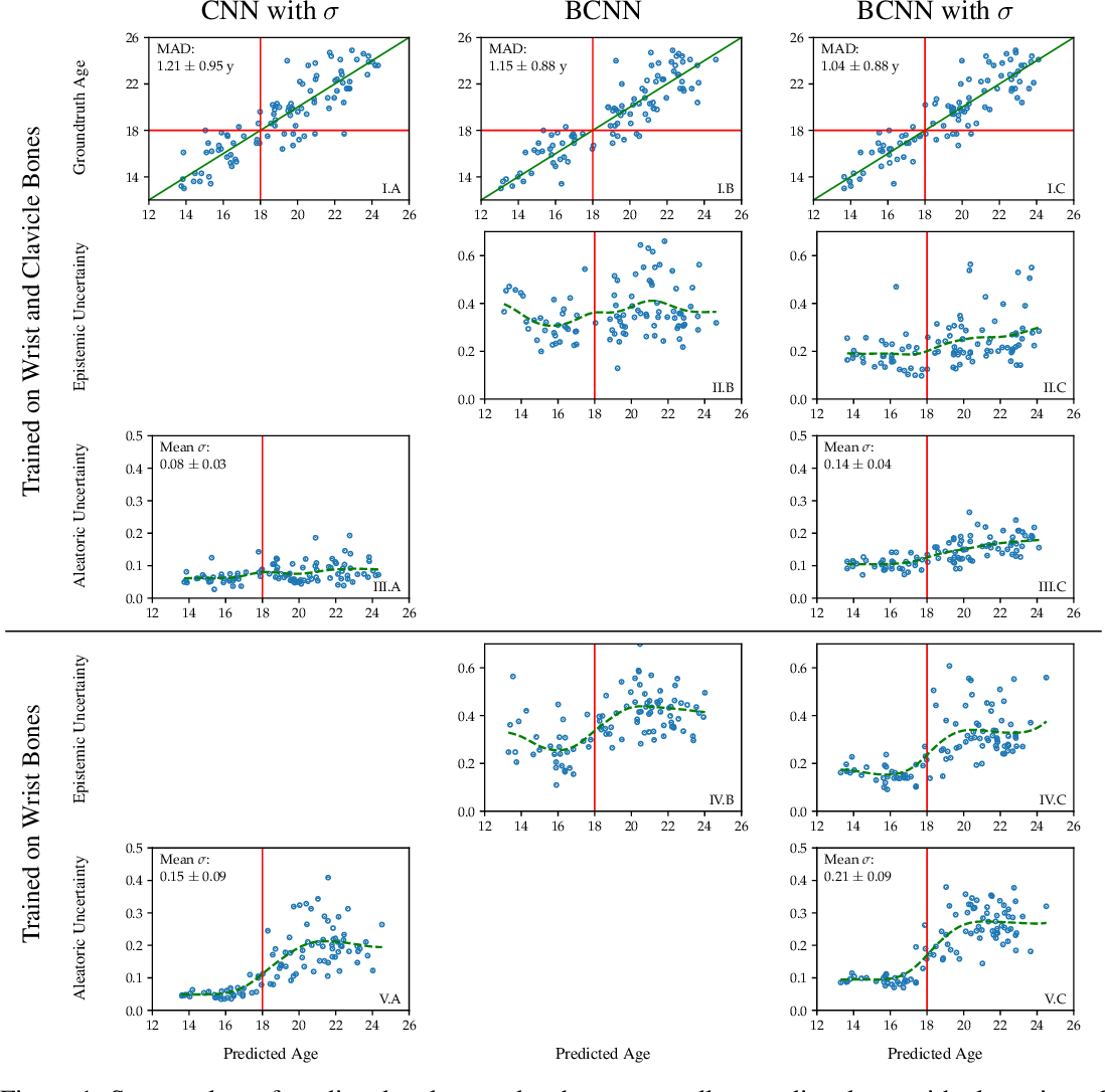 Figure 1 for Variational Inference and Bayesian CNNs for Uncertainty Estimation in Multi-Factorial Bone Age Prediction