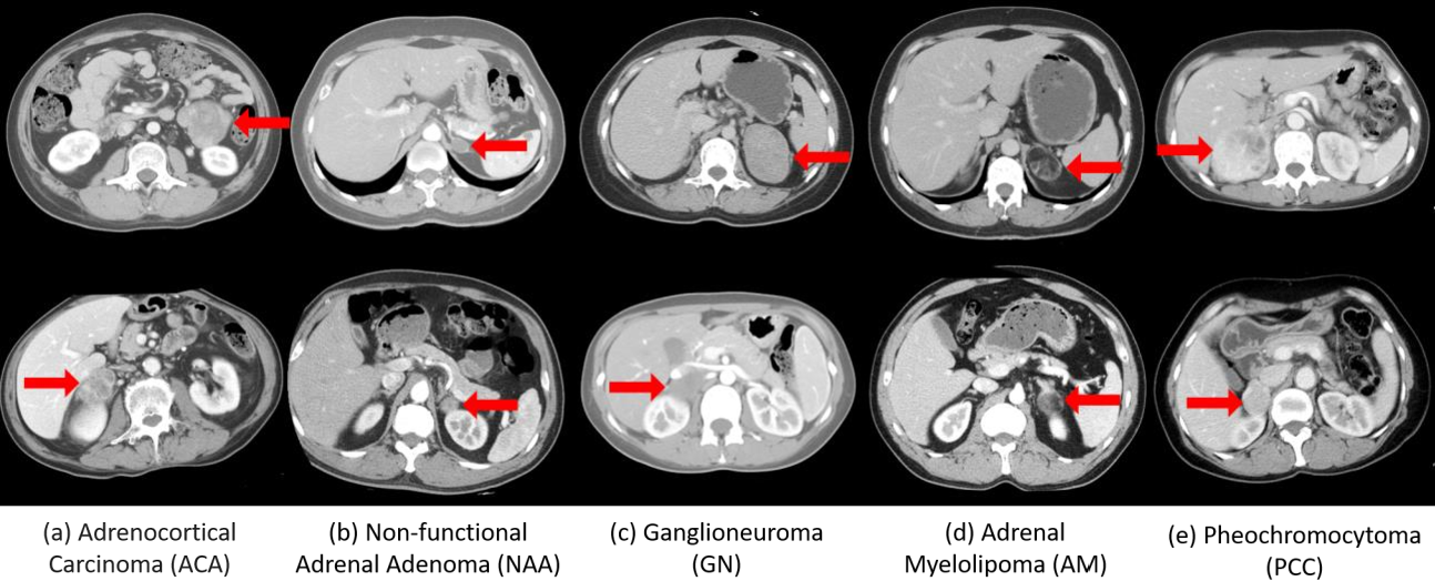 Figure 1 for Deep Multi-Scale Resemblance Network for the Sub-class Differentiation of Adrenal Masses on Computed Tomography Images