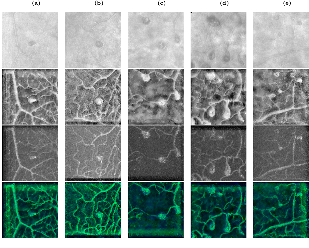 Figure 1 for AOSLO-net: A deep learning-based method for automatic segmentation of retinal microaneurysms from adaptive optics scanning laser ophthalmoscope images