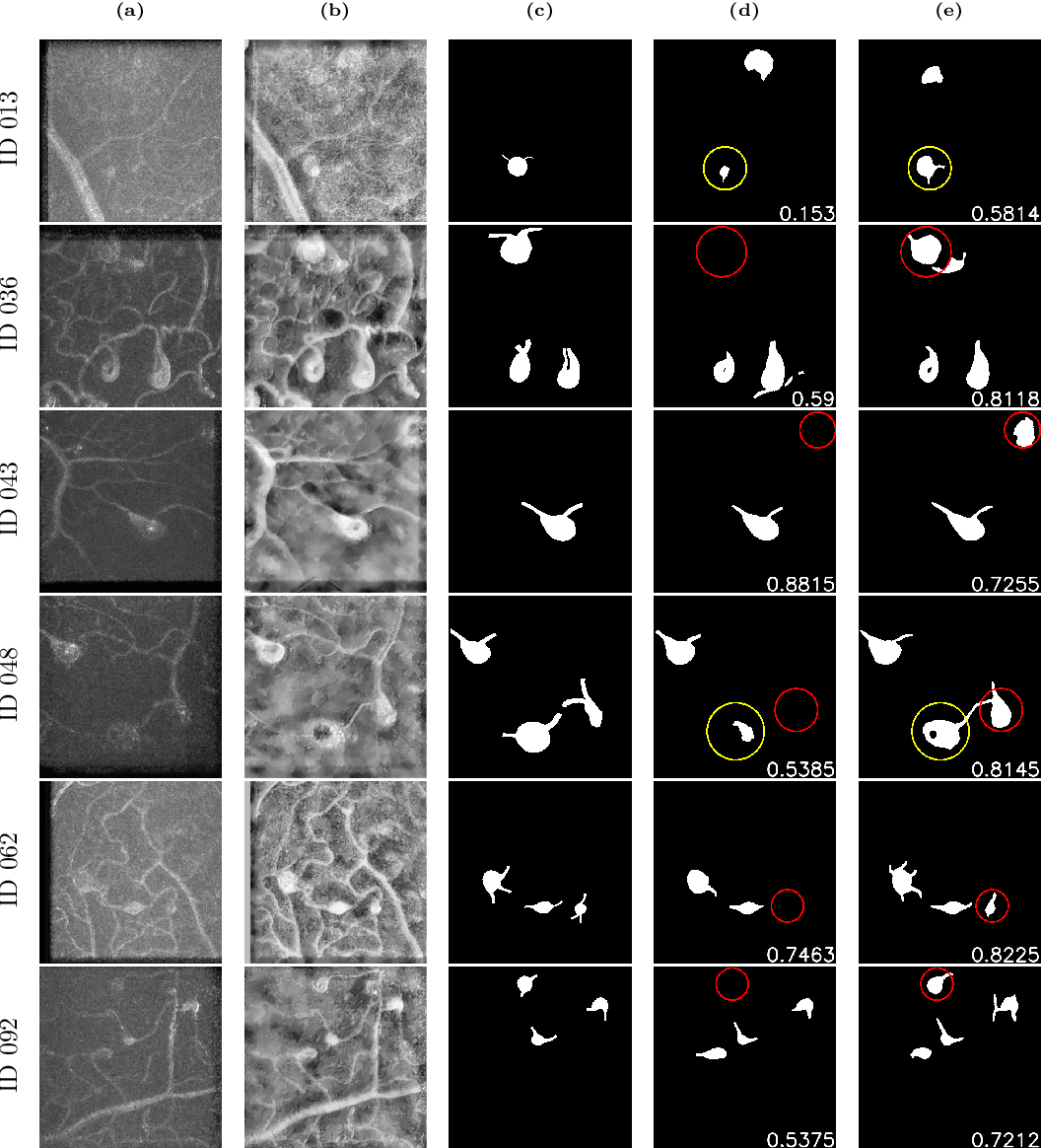 Figure 4 for AOSLO-net: A deep learning-based method for automatic segmentation of retinal microaneurysms from adaptive optics scanning laser ophthalmoscope images