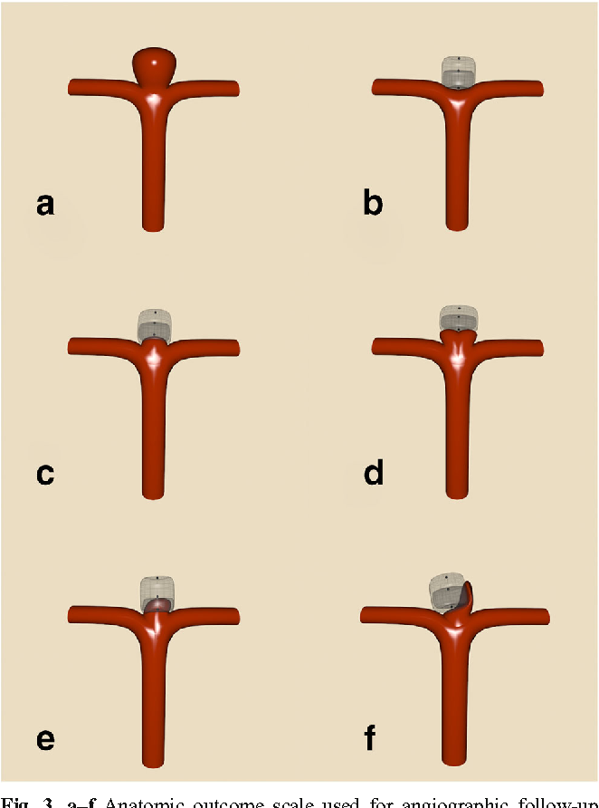 Figure 3 from Woven Endobridge (WEB) Device for endovascular ...