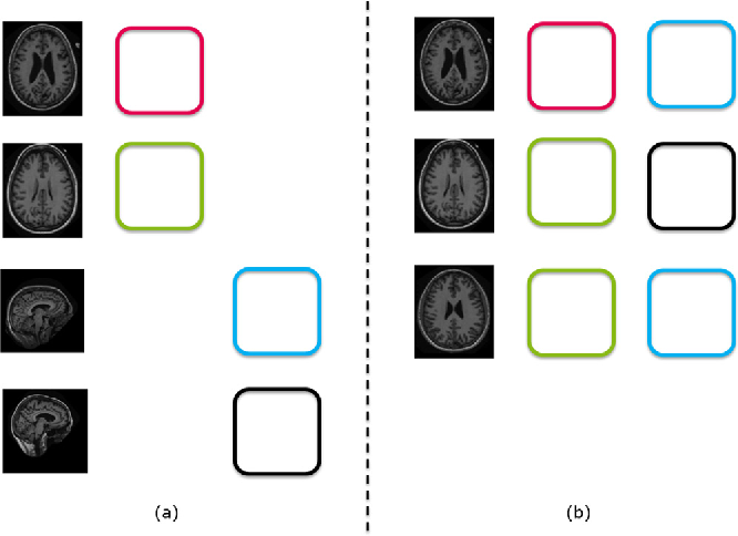 Figure 4 for Not-so-supervised: a survey of semi-supervised, multi-instance, and transfer learning in medical image analysis