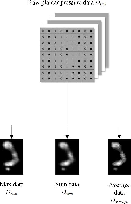 Figure 1 for A Model for Medical Diagnosis Based on Plantar Pressure