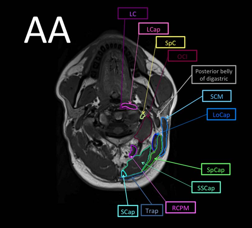 Magnetic resonance imaging atlas of the cervical spine musculature ...