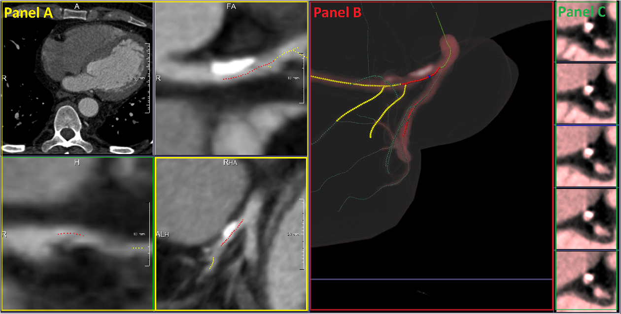 Figure 1 for Coronary Artery Classification and Weakly Supervised Abnormality Localization on Coronary CT Angiography with 3-Dimensional Convolutional Neural Networks