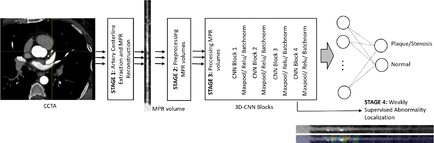 Figure 3 for Coronary Artery Classification and Weakly Supervised Abnormality Localization on Coronary CT Angiography with 3-Dimensional Convolutional Neural Networks