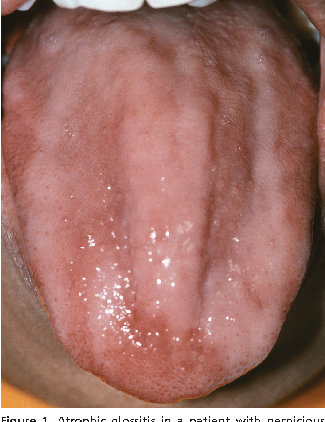 Figure 1 from Oral manifestations of systemic disease. - Semantic ...