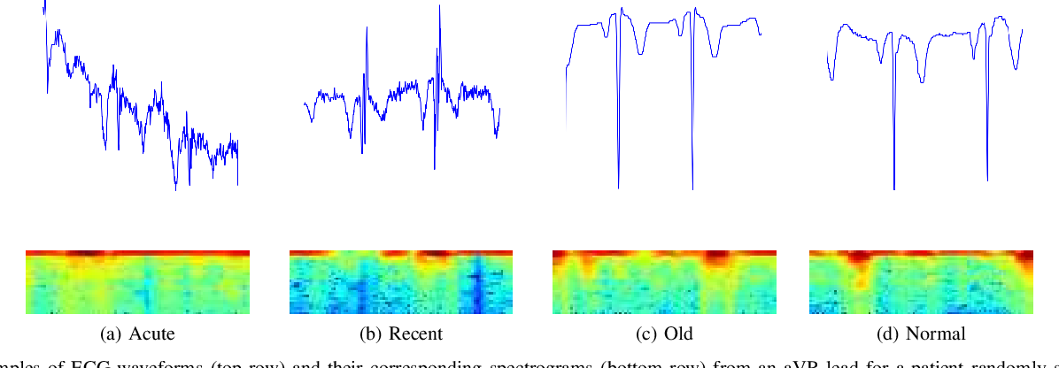 Figure 2 for DeepMI: Deep Multi-lead ECG Fusion for Identifying Myocardial Infarction and its Occurrence-time