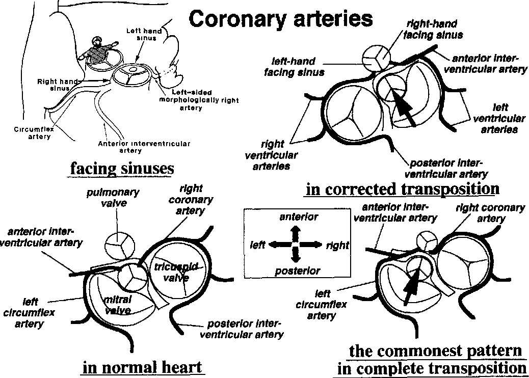 Surgical anatomy of the coronary circulation in hearts with ...