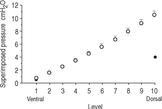 Fig. 4. – Superimposed pressure in patients with adult respiratory distress syndrome (ARDS) (❍). Reference data for normal (●) are: superimposed pressure 0.5±0.1 cmH2O at level 1 and 4±0.5 cmH2O at level 10 [12]; gas/tissue ratio 6±0.3 at level 1 and 2±0.2 at level 10 [12]. Data are presented as mean±SEM.