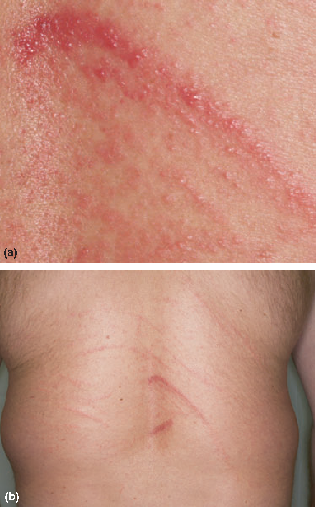 Figure 1 from Shiitake dermatitis: a distinctive clinical entity