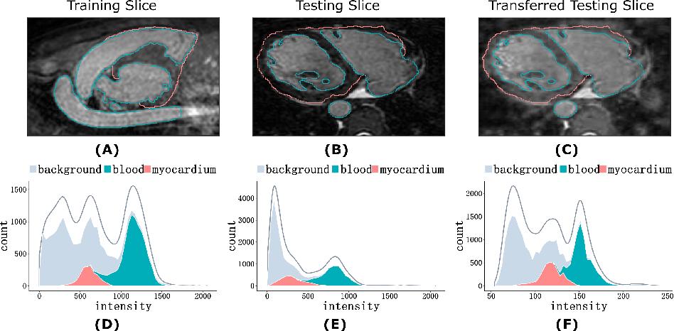 Figure 1 for Neural Style Transfer Improves 3D Cardiovascular MR Image Segmentation on Inconsistent Data