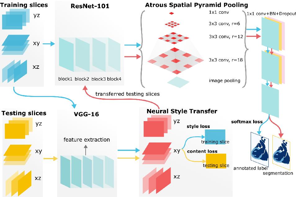 Figure 3 for Neural Style Transfer Improves 3D Cardiovascular MR Image Segmentation on Inconsistent Data