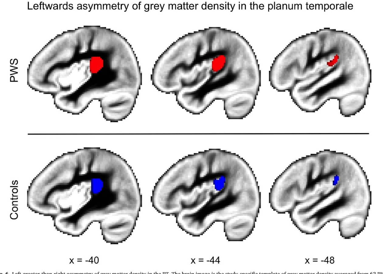 Figure 6 from Planum temporale asymmetry in people who stutter ...