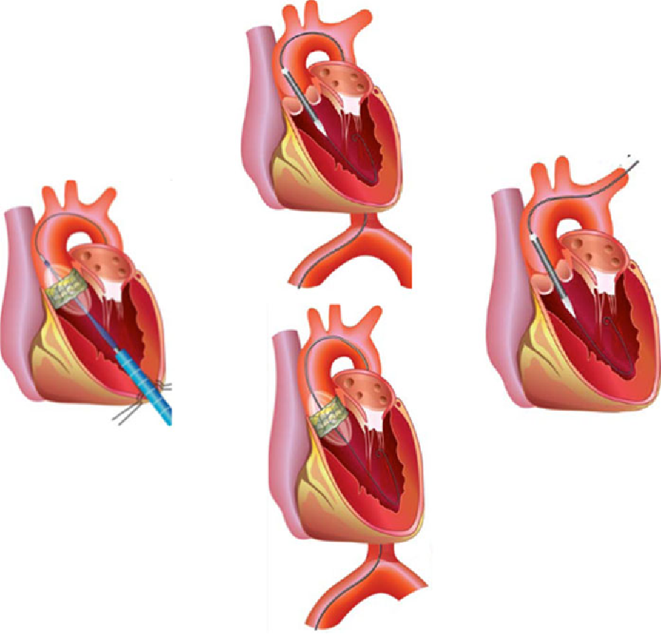 Vascular access in transcatheter aortic valve implantation ...