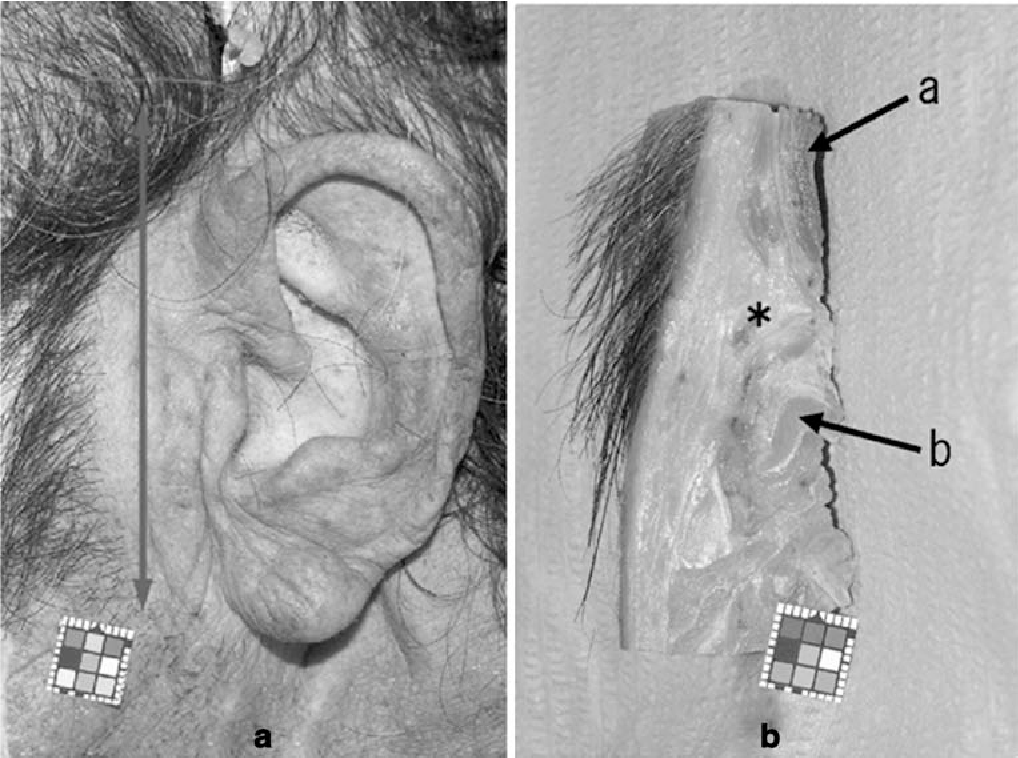 Limited distribution of gravitation abscess caused by infected ...
