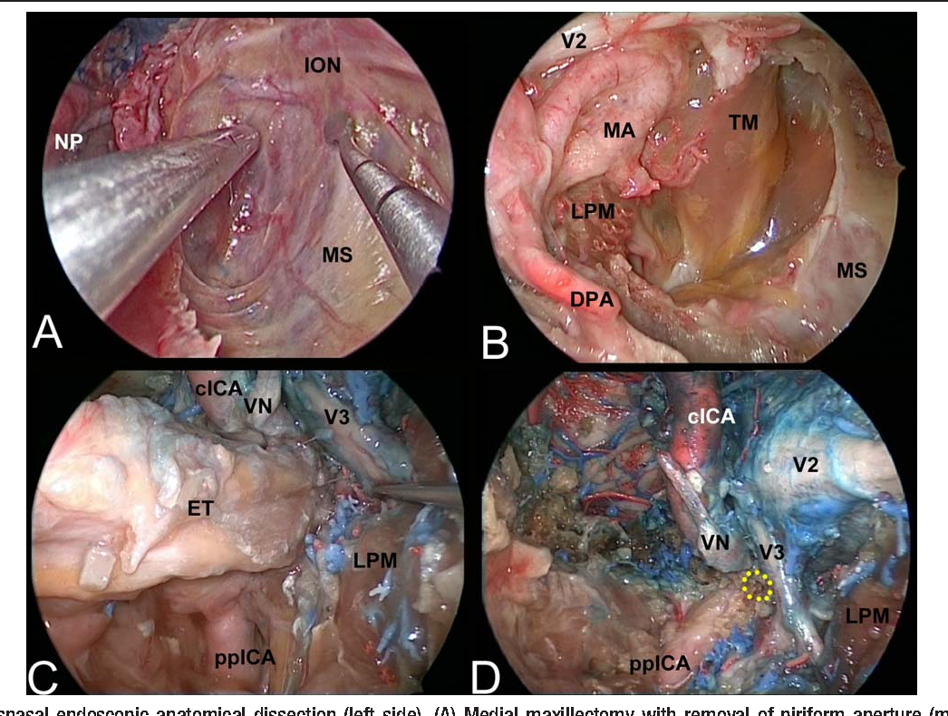 Multiportal combined transnasal transoral transpharyngeal endoscopic ...