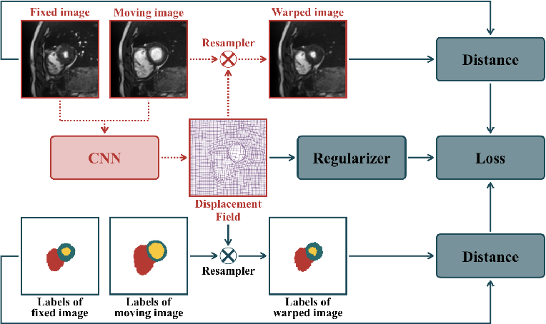 Figure 1 for Enhancing Label-Driven Deep Deformable Image Registration with Local Distance Metrics for State-of-the-Art Cardiac Motion Tracking