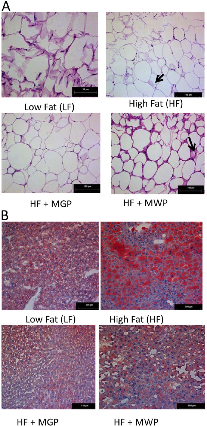 Figure 2. (A) Histology of the epididymal adipose tissue, stained with hematoxylin and eosin; (B) histology of liver tissue, stained with Oil-red-O. Arrows indicate crown-like structures in adipose tissue.