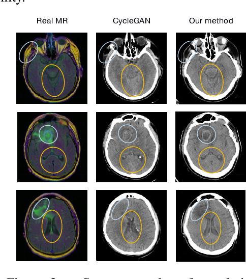 Figure 4 for Discriminative Cross-Modal Data Augmentation for Medical Imaging Applications