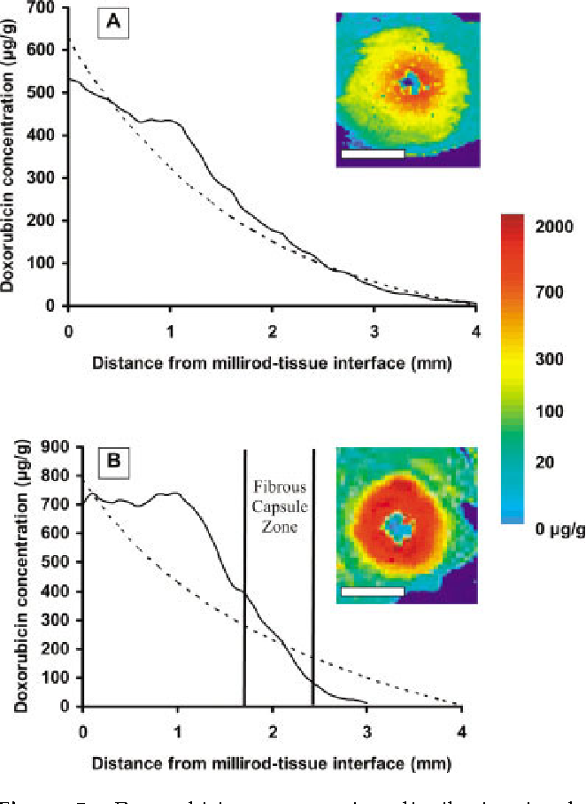 Effect Of Fibrous Capsule Formation On Doxorubicin Distribution In