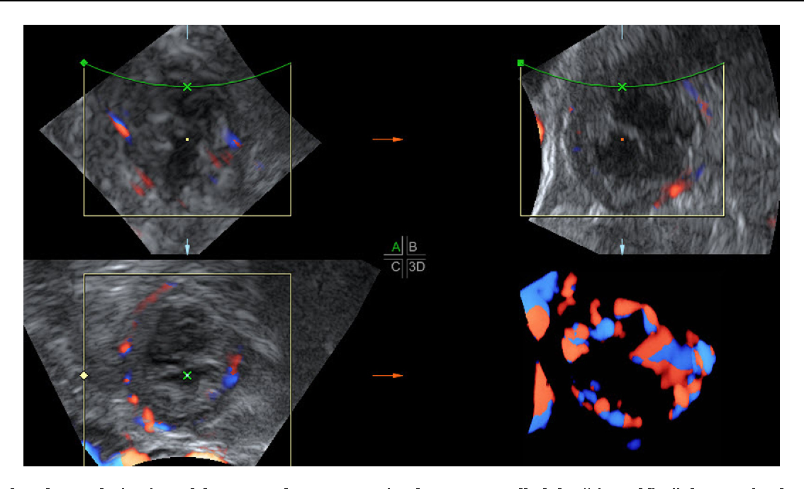 Figure 1 from 3D ultrasound imaging of the human corpus luteum