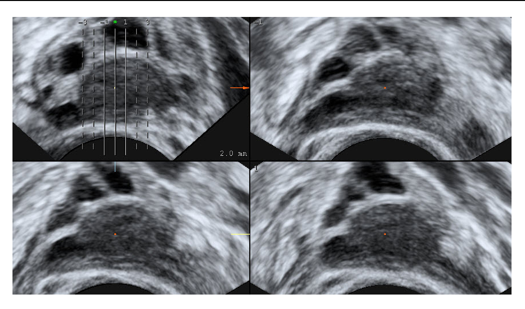 Figure 3 from 3D ultrasound imaging of the human corpus luteum