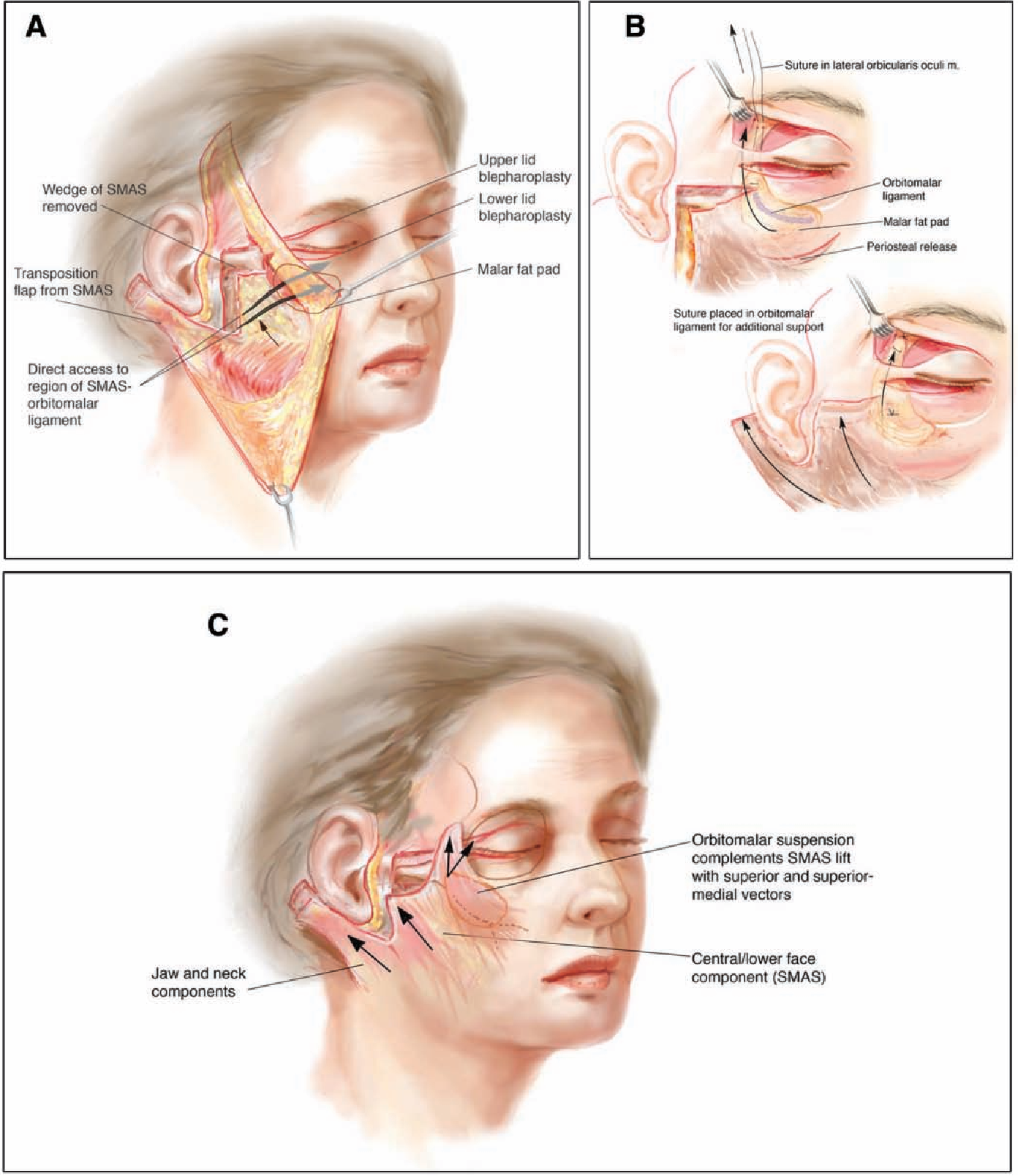 Orbitomalar suspension during high SMAS facelift ...