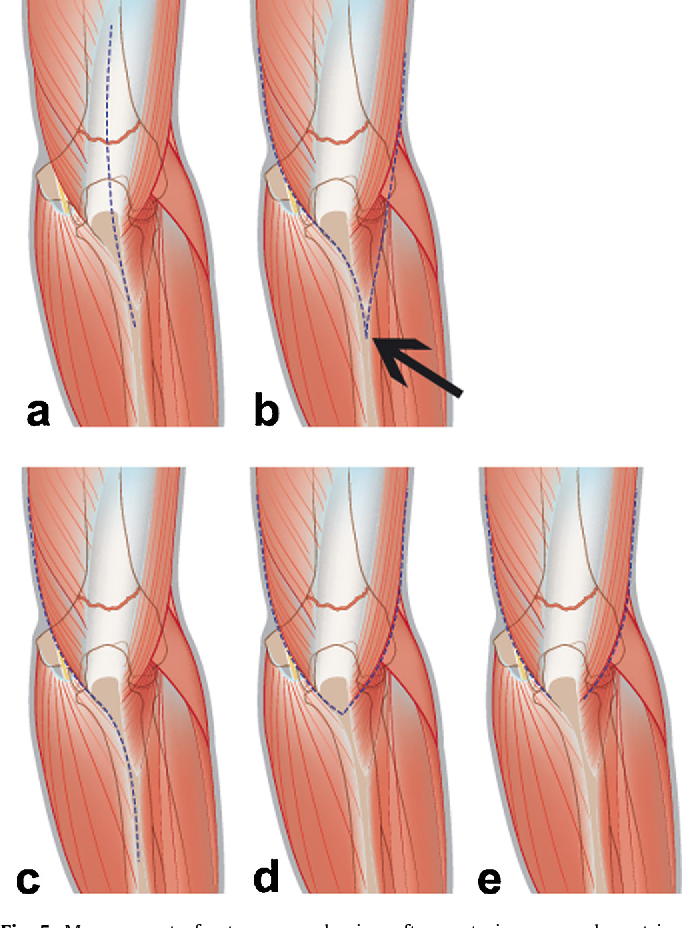 Figure 6 from rticular fractures of the distal humerus - Semantic ...